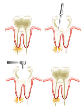 Root Canals | Dr Undorf | Dentist San Francisco, CA