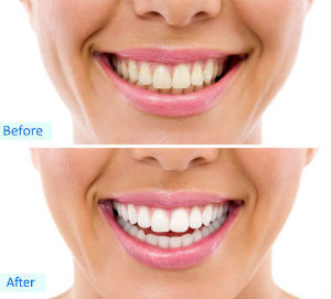 Teeth Whitening | Dr. Undorf | San Francisco, CA Dentist